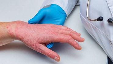 في الشهر العالمي للتوعية حول الصدفية... أحدث العلاجات تسمح بالتعافي