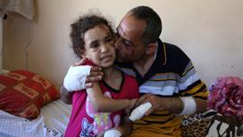 بعد المواجهة الأخيرة... أطفال غزّة يخافون الليل والموت!